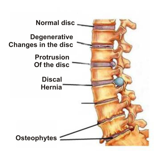 Osteochondroze 2 laipsnio