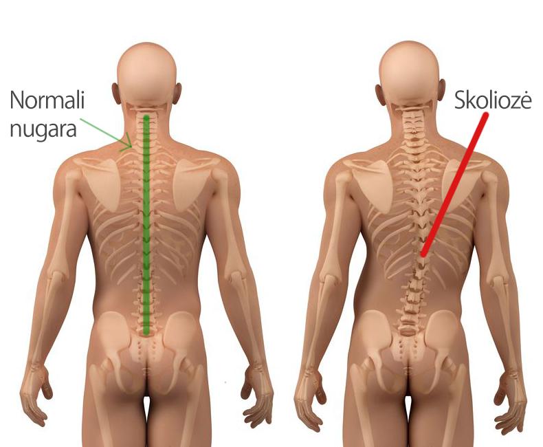Skoliozė - nugaros iškrypimas